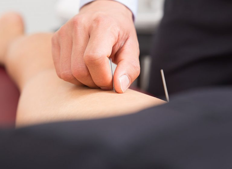 acupuncture therapy Burnaby