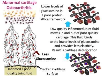 Abnormal Cartilage
