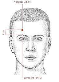 Frontal Headache Treatment