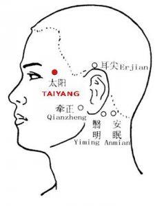 Temporal Headache Treatment