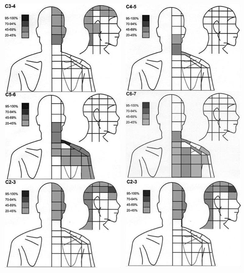 Migrain Area in Human Head